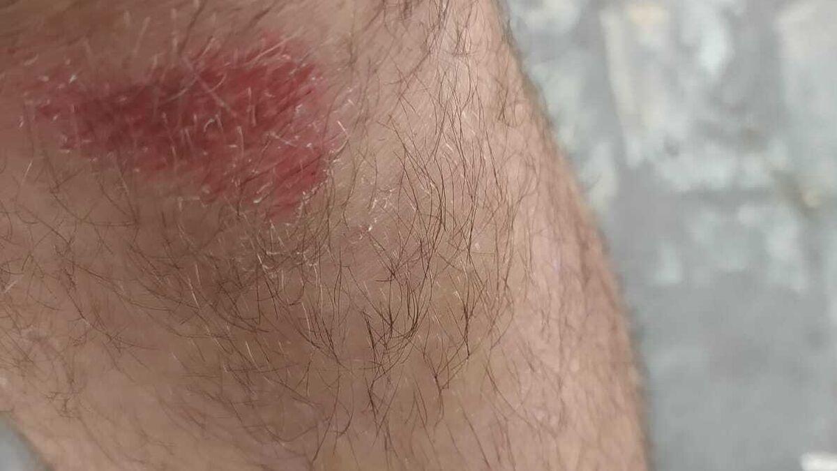 Un conductor de Comes es agredido por dos jóvenes en el trayecto La Línea-Los Barrios.